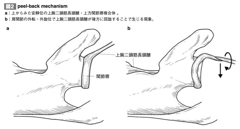 関節唇の解剖図